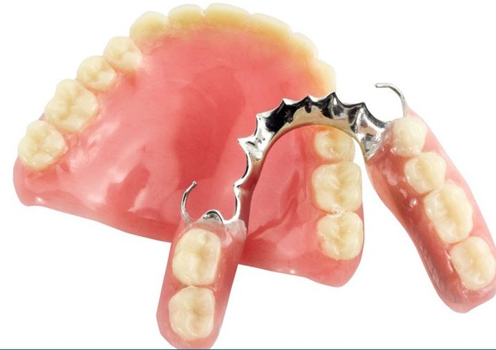 Which Type of Denture Is Right For You?